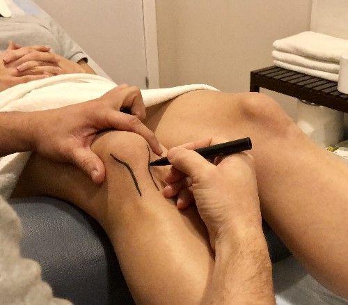 Tendinitis rotuliana causas y síntomas - Clínicas H3 fisioterapia