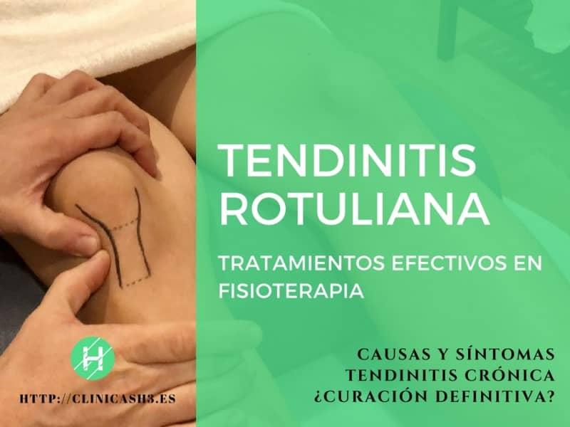 Tendinitis rotuliana tratamiento con fisioterapia. Clínicas H3