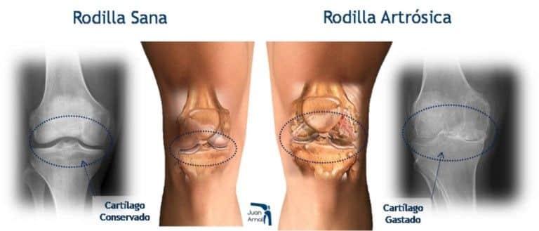Artrosis de rodilla o gonartrosis - Clínicas H3 fisioterapia