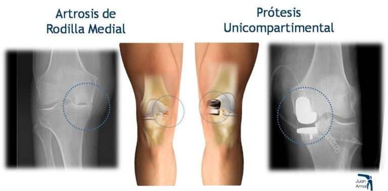 Artrosis de rodilla prótesis unicompartimental - Clínicas H3 fisioterapia
