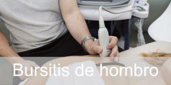 Bursitis de hombro o subacromial. Tratamiento y fisioterapia