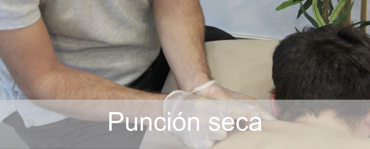 Punción seca en fisioterapia Madrid