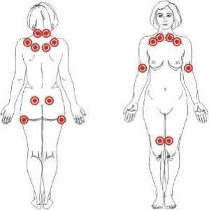 Puntos dolorosos posibles con fibromialgia