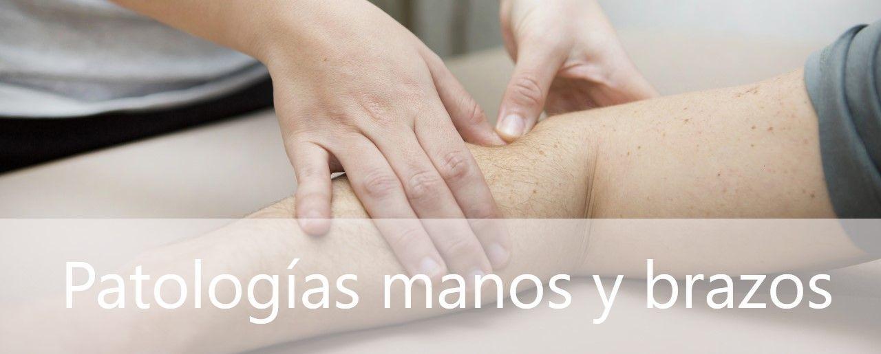 Patologías con dolo de manos y dolor en el brazo