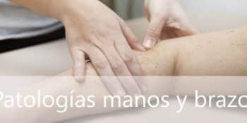 Listado de patologías con dolor de manos y brazos
