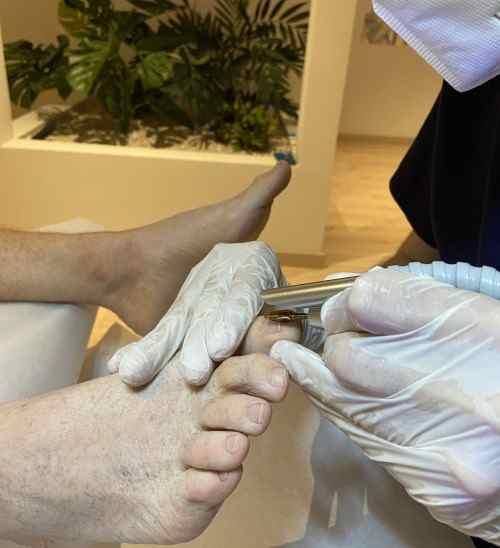 Tratamiento para uñas encarnadas en los pies - Clínicas H3