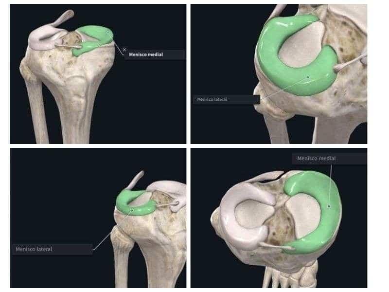 Lesión de meniscos, tratamiento fisioterapéutico clínicas H3
