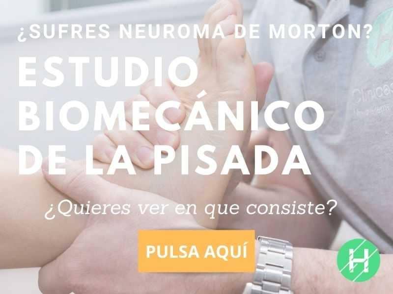 neuroma de morton fisioterapia. causas y soluciones. Clínicas H3 Madrid