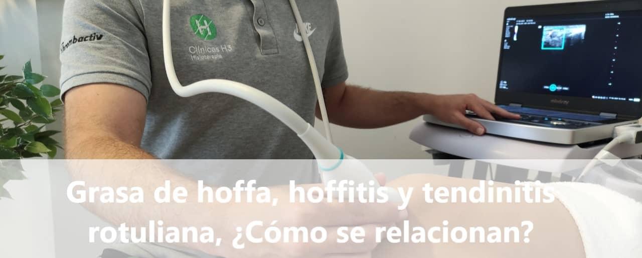 Grasa de hoffa y su relación con la hoffitis y la tendinitis rotuliana